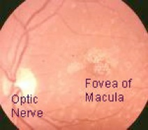Stargardts: Macula covered by scar tissue due to accumulation of A2E by-product (yellowish blotches)
