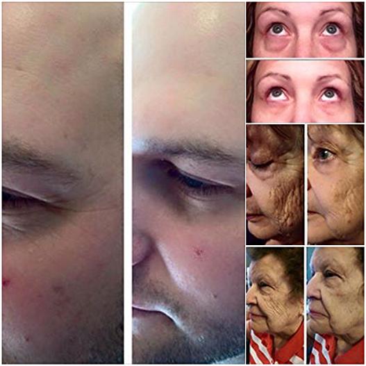 Skin Care Proven Results 1