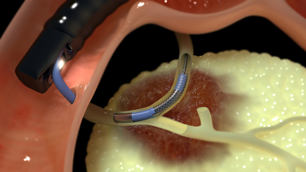 Habib™ EndoHPB Ablation of biliary and pancreatic tumours via ERCP