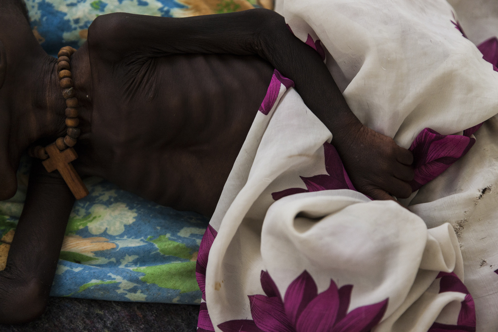 One-year-old Chieng Malek has been fighting for his life for three weeks in the Médecins Sans Frontières (MSF) hospital where he is being treated for malnutrition in the UN camp for internally displaced people in Bentiu, South Sudan, July 3, 2014. Chieng passed away on July 4, 2014.