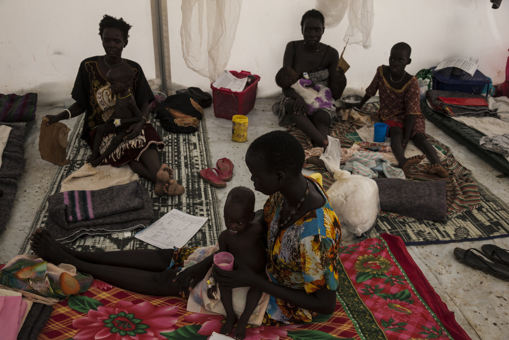 Children are treated for malnutrition at the Médecins Sans Frontières (MSF) hospital in the UN camp in Bentiu, South Sudan, June 20, 2014.