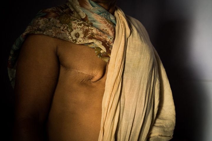 Gurmail Kaur, 58, who had her breast removed in 2011, poses for a portrait in her home in Mari Mustafa, Punjab, India, October 3, 2016.