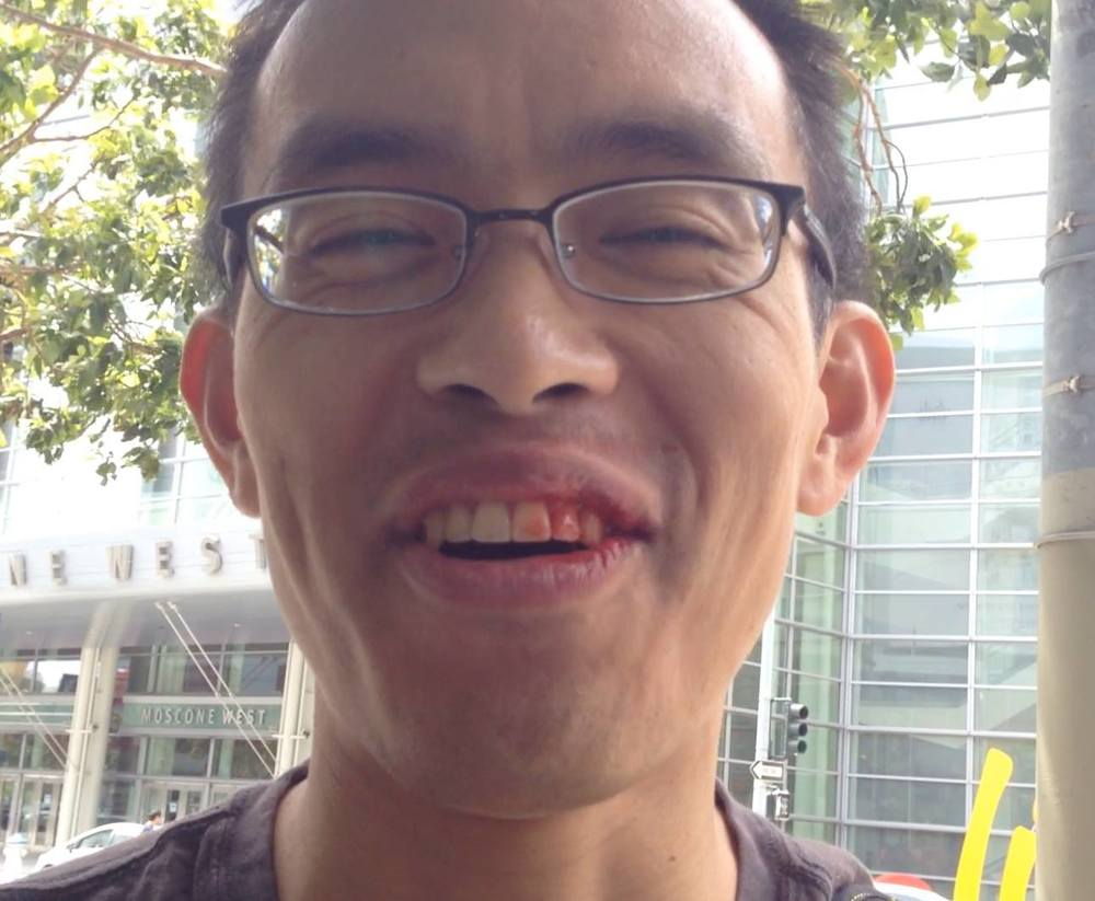 Punched in the face at a demonstration in May 2014, but still smiling!