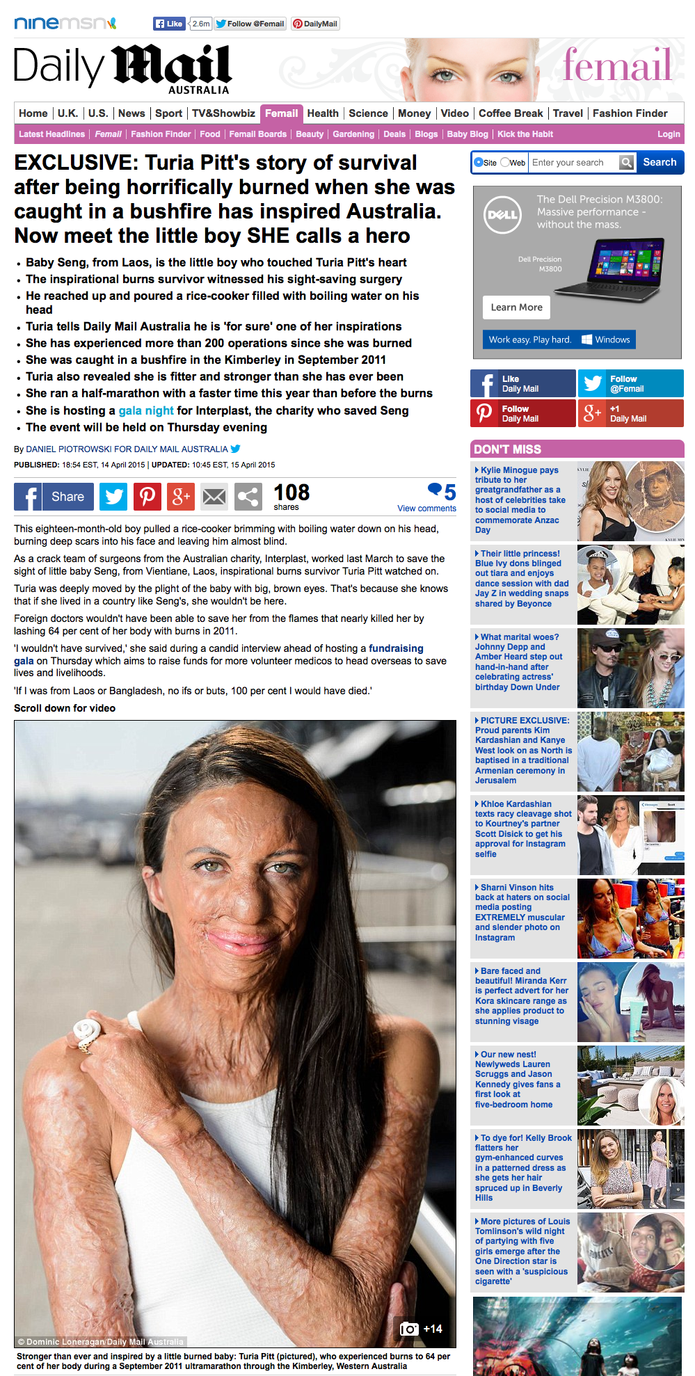 20150424_Burn_survivor_Turia_Pitt_meets_Laos_boy_SHE_calls_a_hero_Daily_Mail_Online_-_2015-04-25_11.37.41.png