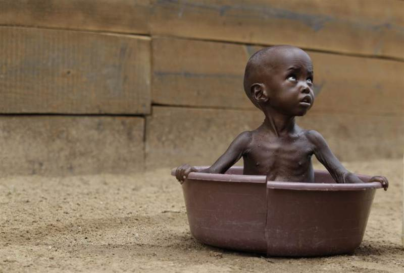 This is a photo of Aden Salaad, 2, looks up at his mother as she bathes him in a tub at a Doctors Without Borders hospital, where Aden is receiving treatment for malnutrition, in Dagahaley Camp, outside Dadaab, Kenya, on Monday, July 11.
