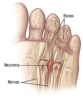 Neuroma Graphic