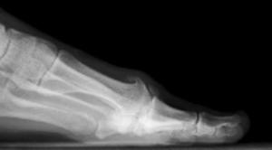 Hallux Rigidus X-ray 2