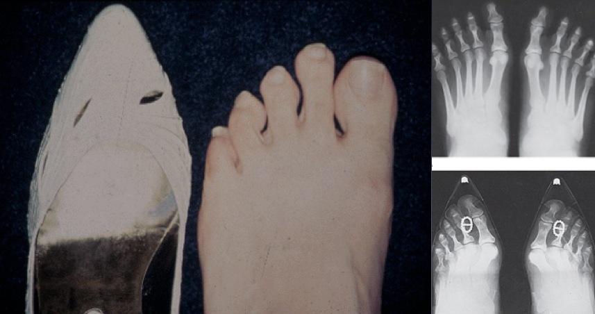 x-ray in and out of shoe