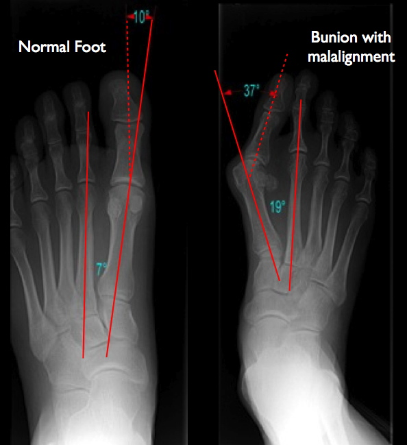 Xray Foot Bunion