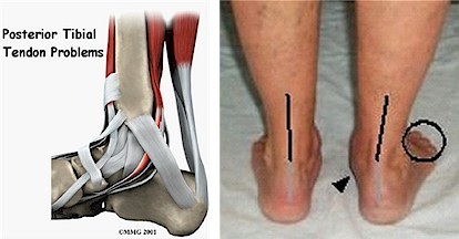Flat Foot / Posterior Tibial Tendonitis — Travis J. Kemp, M.D.