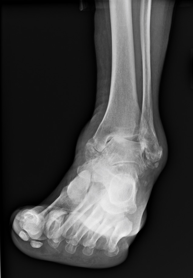 Chronically Unstable Ankle - This is an ankle that was unstable for 25 years.  This patient is left with a severe deformity and chronic pain due to arthritis.  This could have been prevented with an ankle stabilization surgery years prior to reaching this point.  If your ankle is unstable, do not wait until it is too late to have it fixed.