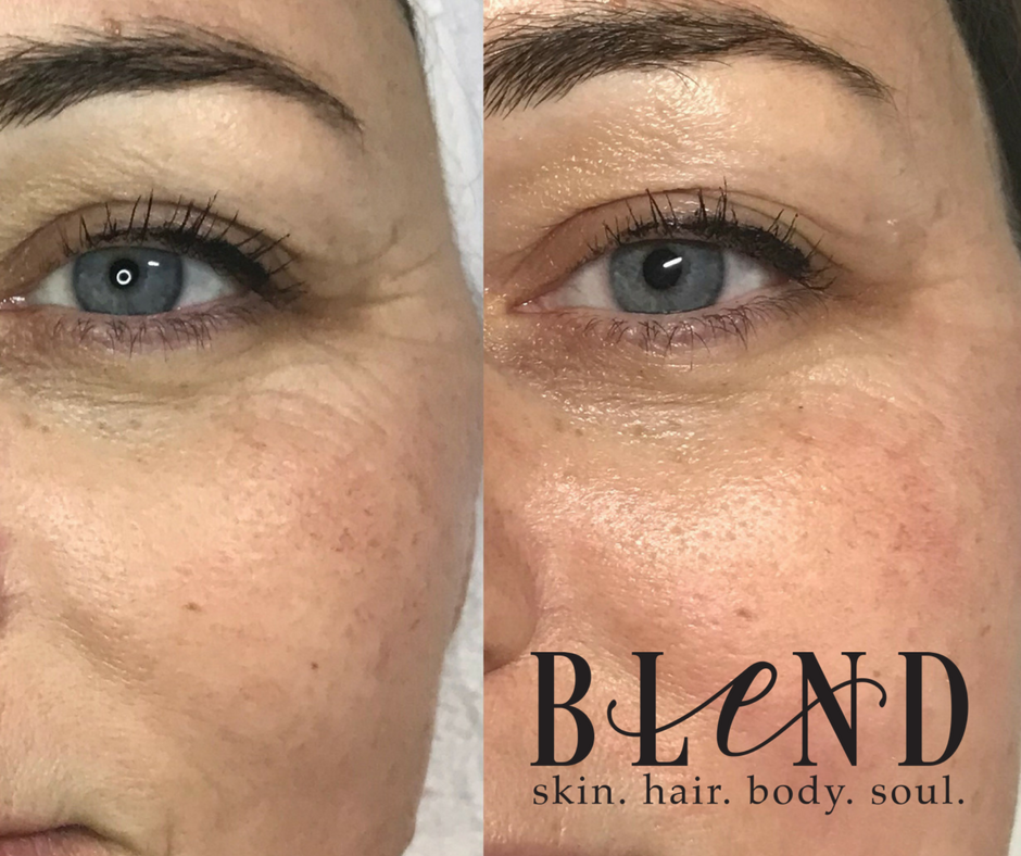 Before & After  1 Filler Infusion Facial