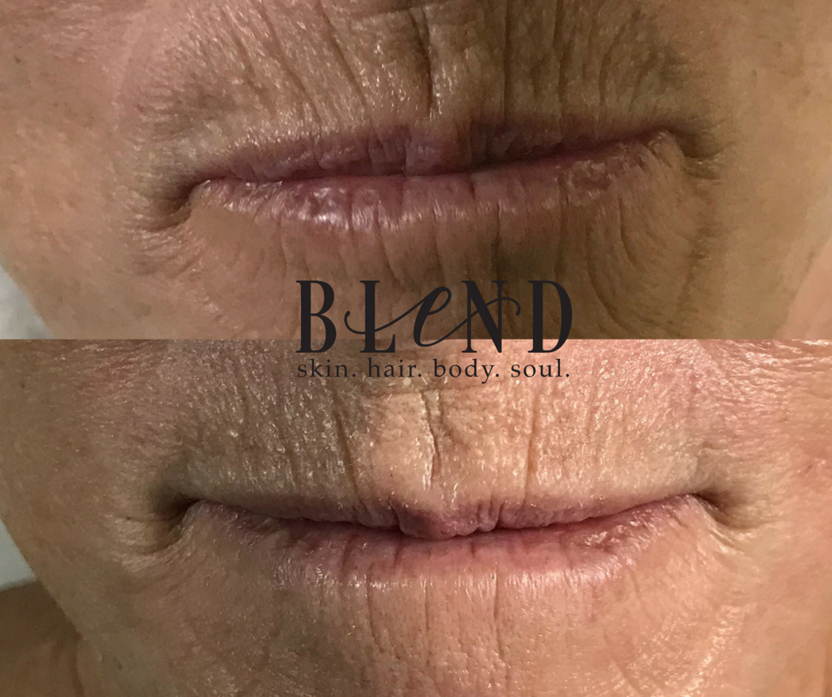 Before & After  3 Filler Infusion Facials