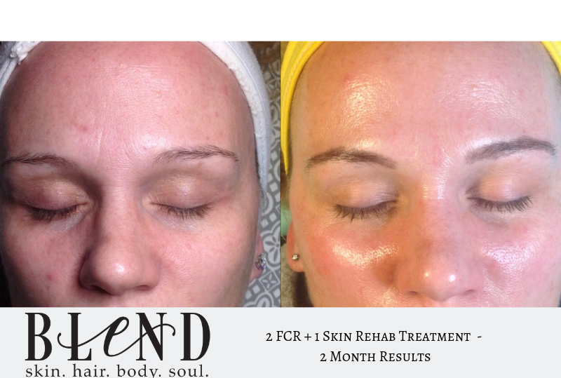 2 FCR 1 Skin Rehab.png