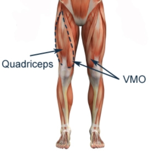 The VMO is a cute, teardrop-shaped muscle of the quadriceps muscle group.
