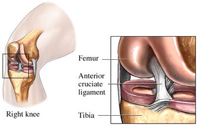 The ACL helps you cut, plant, and pivot without exploding your knee.