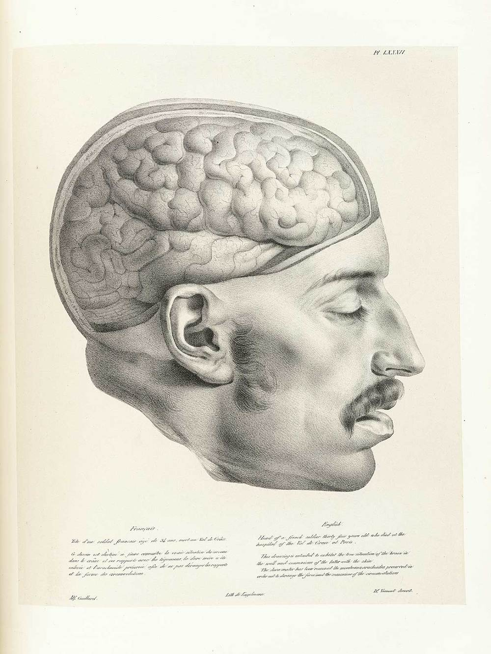 I mage from: http://www.nlm.nih.gov/exhibition/historicalanatomies/vimont_home.html