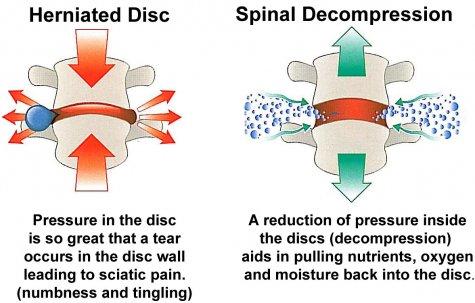decompression-vacuum-effect.jpg