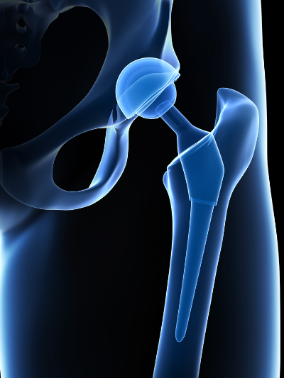 Medical implants treated by the Agluna® process included hip joints