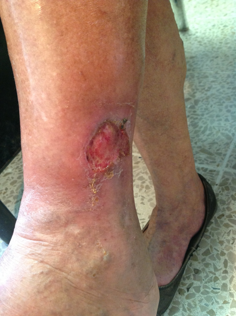 Woman who suffered burns on his leg, attended the clinic two weeks later with an infection.