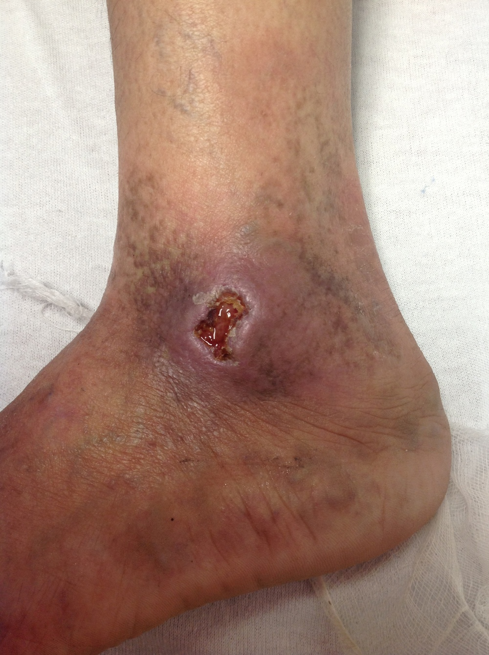 Female patient with venous stasis ulcers.