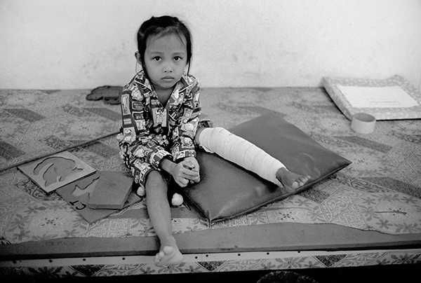 A young client at the Cambodia Trust\'s rehabilitation centre in Kompong Chhnang.