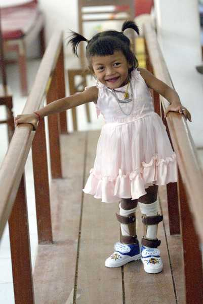 A young cerebral palsy client, practising walking at the Cambodia Trust's Phnom Penh clinic.