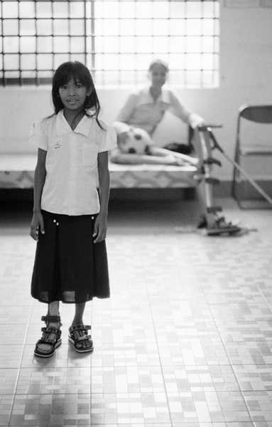 A young polio client wearing her new leg brace.