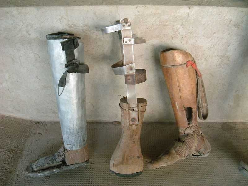 Many landmine survivors try and make their own prosthetic limbs out of wood and scrap metal.