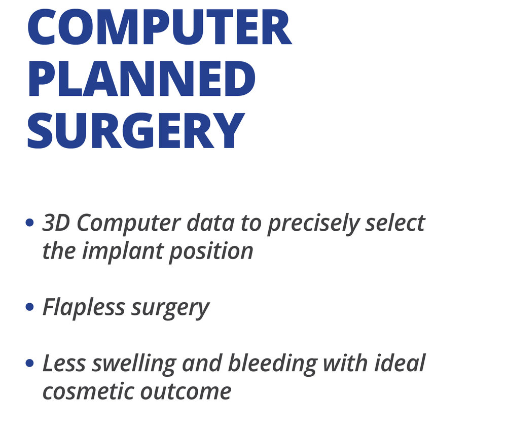 ● 3D Computer data to precisely select the implant position  ● Flapless surgery  ● Less swelling and bleeding with ideal cosmetic outcome