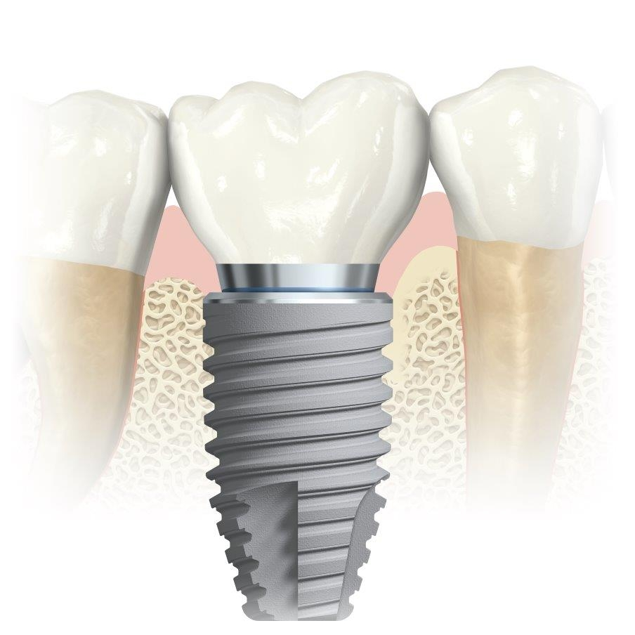 single-dental-implant-bundoora-1.jpg