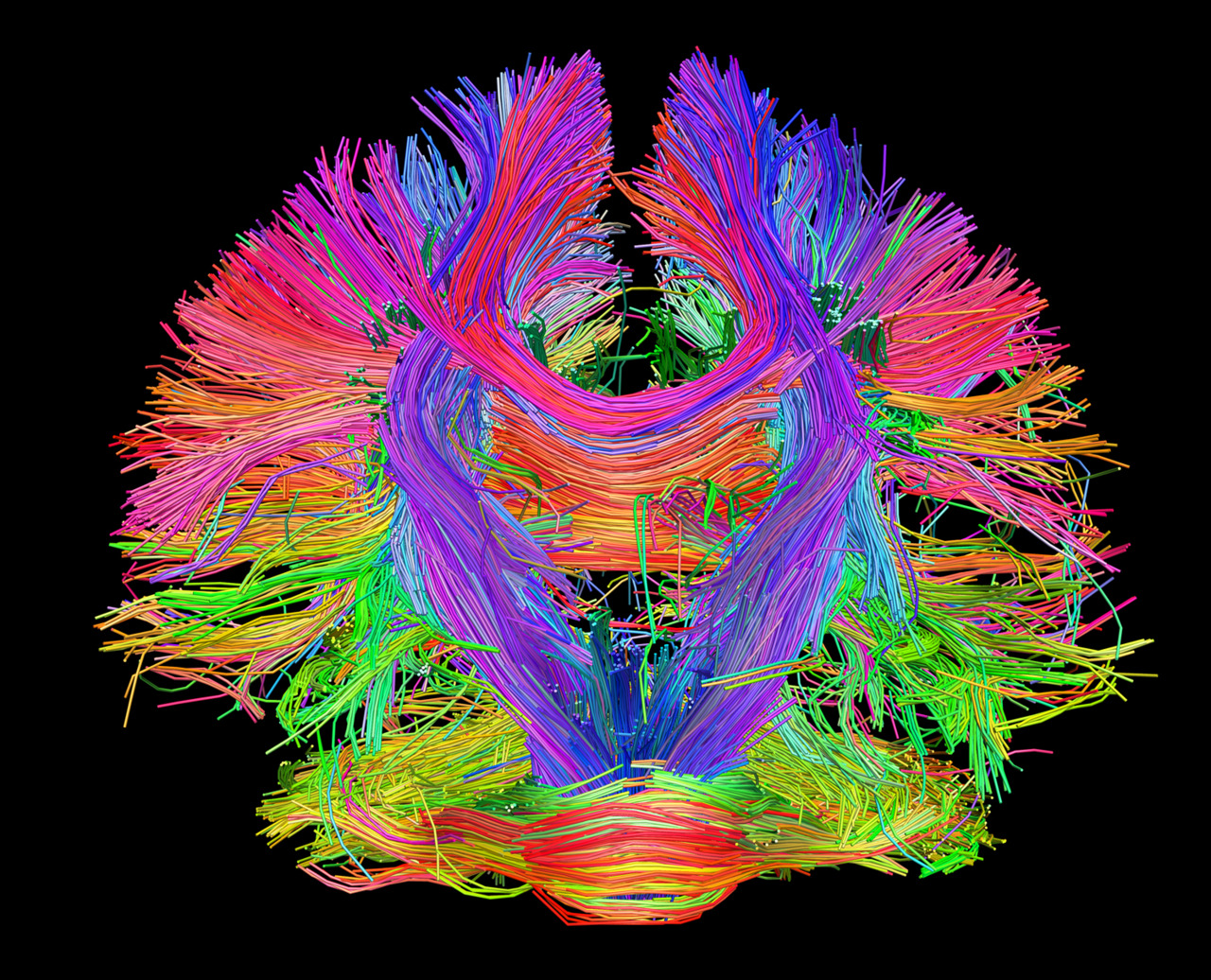 Brain Mapping Project Mapping the Human Brain to Understand the Human Mind — THE THINK TANK Brain Mapping Project