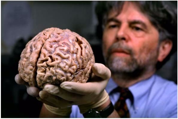 Your Paper Brain How The Mammalian Brain Got All Of Its