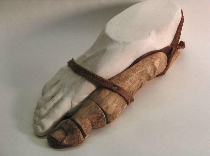 Prosthetic Toe. H. Coal Harris. 2007-2012