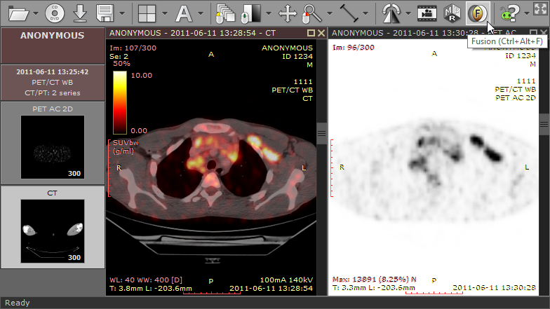 radiant_dicom_viewer_image_fusion_ct_pet_screen.png