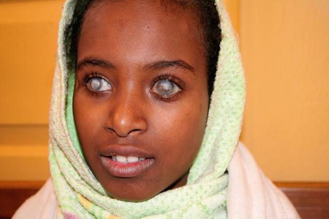 12-jähriges Mädchen, erblindet wegen Vitamin-A-Mangel (Foto: Community Eye Health)