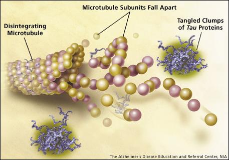Tau-Knäuel stehen am Anfang der Alzheimer-Erkrankung