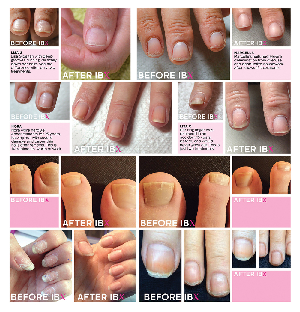 IBX NAIL STRENGTHENING TREATMENT BEFORE AND AFTER