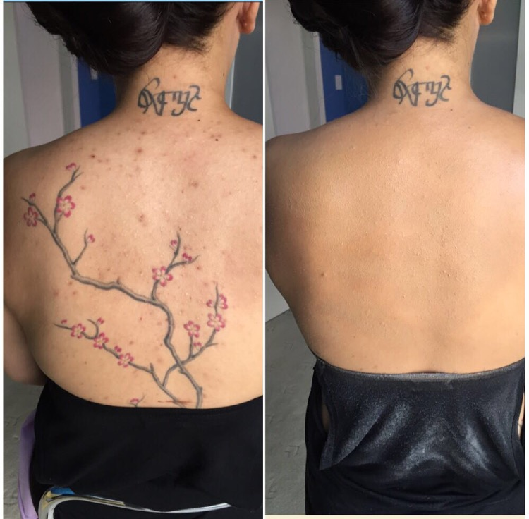 Back Tattoo Camouflage Makeup Cover Up