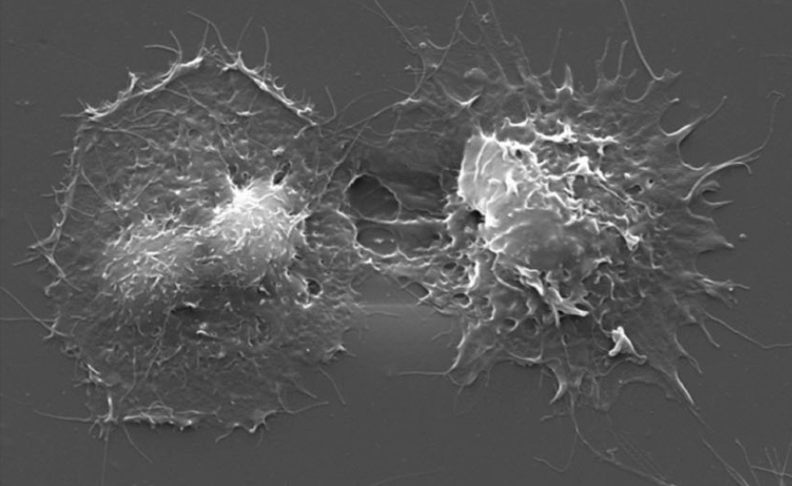 Megakaryocyte spreading