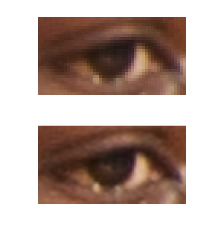 The right eye of Harrison Barnes. Raw image at top, super resolved version at bottom.