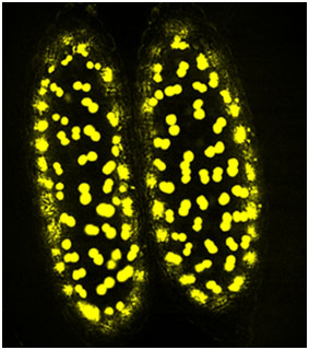 An anther of wild type  Arabidopsis  with DR5::YFP.  Photo courtesy of Dr. Zhongchi Liu