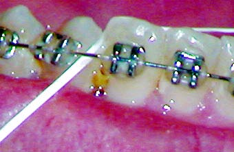 braces problems removing food caught in teeth
