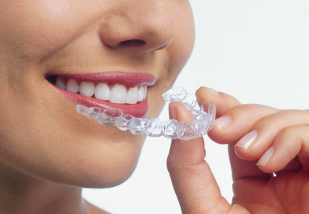 Invisalign Queens, Bronx, rockville centre ny