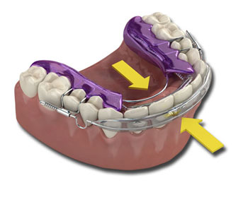 orthodontic appliances used by dr. halberstadt