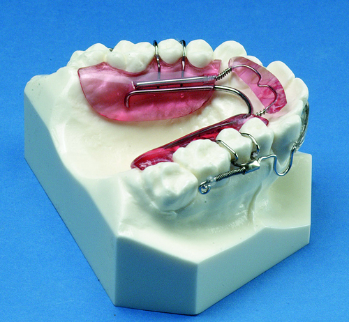 inman aligner orthodontic retainer