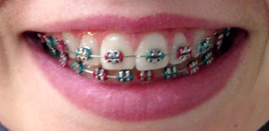 Read more about orthodontic braces