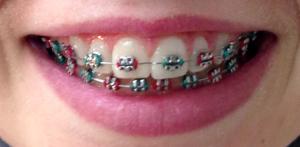 bronx braces