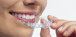 Read more about Invisalign treatments