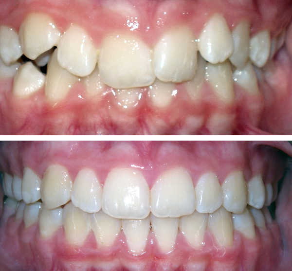 queens braces before and after